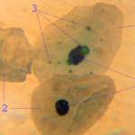 Chlamydia pneumoniae Symptome und Ursachen